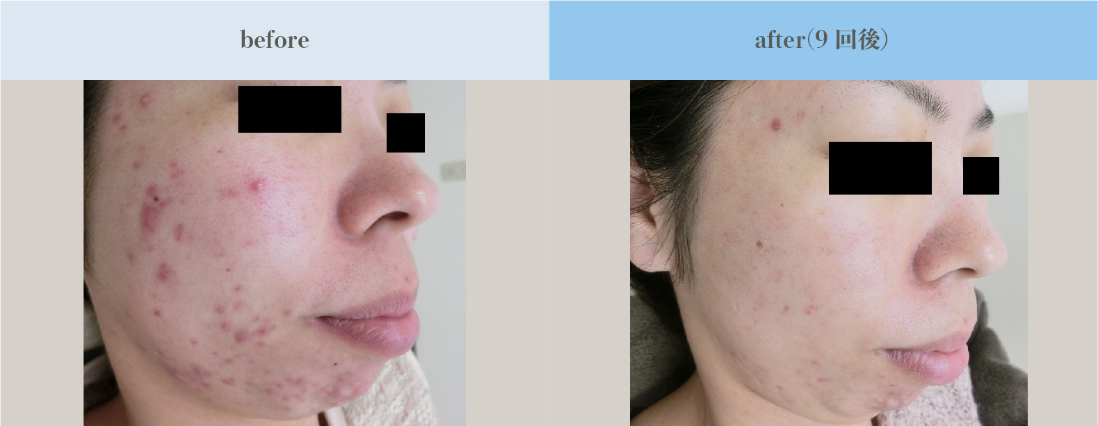 Micro fractional laser